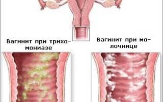 Постоянная молочница а инфекций нет