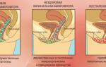 Средства от молочницы и восстановления микрофлоры после