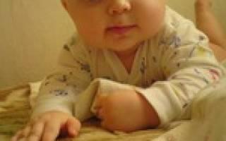 От молочницы у детей во рту содой отзывы