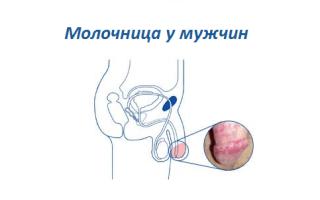 Какие мази для лечения молочницу у мужчины