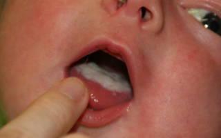 Не могу избавиться от молочницы у ребенка во рту