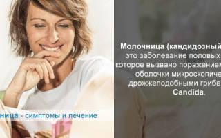 Лечение молочницы и кольпита у женщин