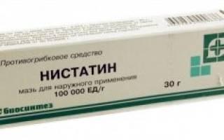 Лечение молочницы на языке нистатином