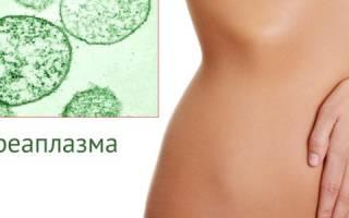Уреаплазмоз в сочетании с молочницей