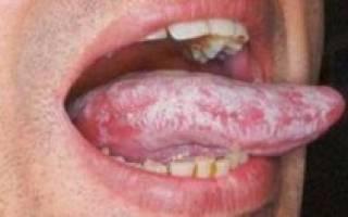 Щиплет ли язык при молочнице