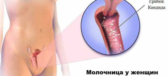 Показать на фото болезнь молочницу