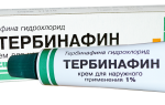Тербинафин можно использовать при молочнице