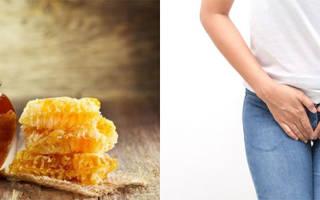 Можно ли вылечить молочницу во рту медом