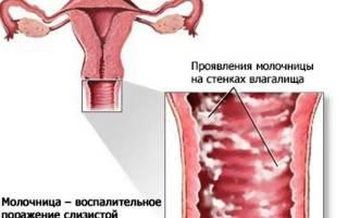 Препарат от молочницы с йодом