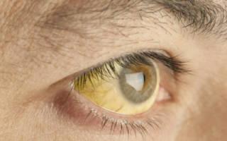 От чего желтые белки глаз от молочницы