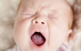 Стоматит молочница у новорожденных во рту