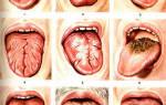 Эффективное лечение молочницы полости рта