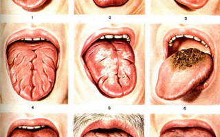 Помогите вылечить молочницу во рту