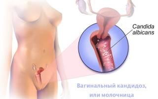 Средство от молочницы и грибковых заболеваний