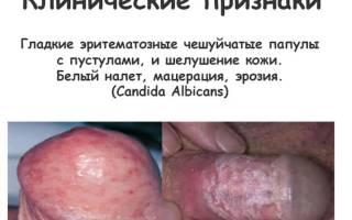 Половая молочница у мужчин симптомы фото
