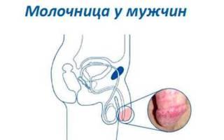 Таблетки низорал от молочницы у мужчин