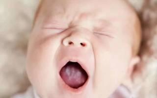 Лечение молочницы у детей во рту в стационаре