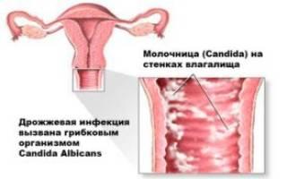 Средство от молочницы и эрозии шейки матки