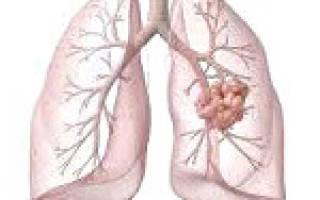 Лечение молочницы верхних дыхательных путей