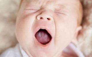 Первые симптомы молочницы у ребенка