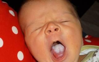 Винилин для грудничков при молочнице