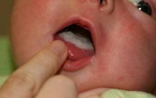 Перекись водорода при молочнице у новорожденных